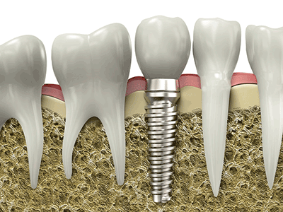 Dental implants and osseointegration