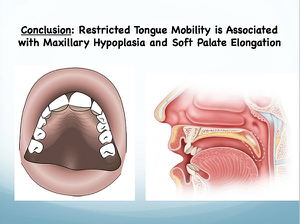 tongue tie and restricted tongue mobility cause many problems, as described by this infographic