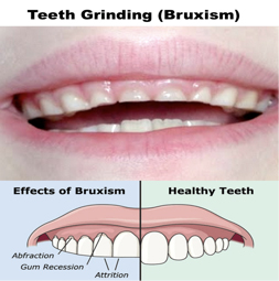 Bruxism infographic. Teeth grinding is oftentimes a sign of inefficient breathing